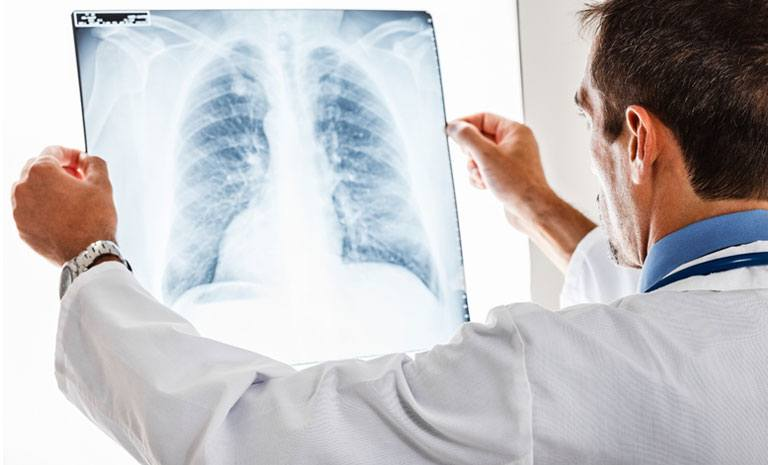 This is a photo of a doctor examining an x-ray of a patient's lungs. The image symbolizes testing and optimizing the promotional messages for a pharmaceutical company that recently completed a clinical trial for a lung cancer treatment that included some promising, breakthrough results.
